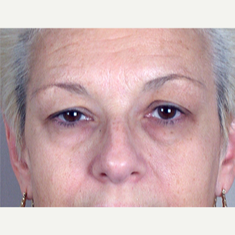 45-54 year old woman treated with Eyelid Surgery before 3213223