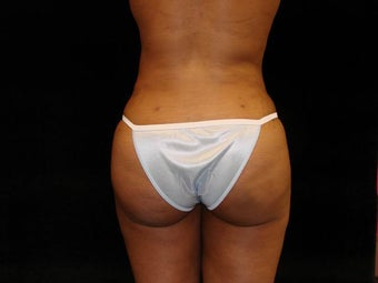 Buttocks Augmentation by Fat Grafting after 159257