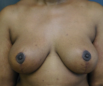 42 year old African-American woman who underwent a breast lift for her breast ptosis.
