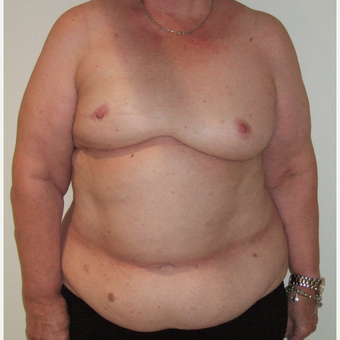 55-64 year old woman treated with Breast Reconstruction before 2829793