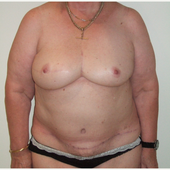 55-64 year old woman treated with Breast Reconstruction after 2829793