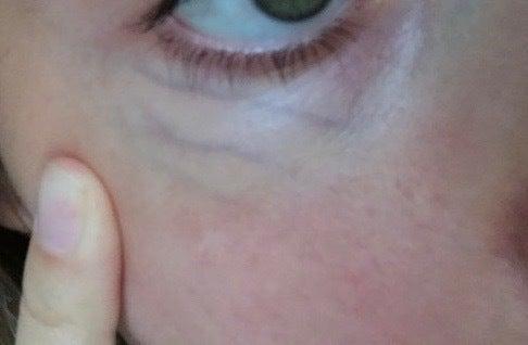 green veins under eyes