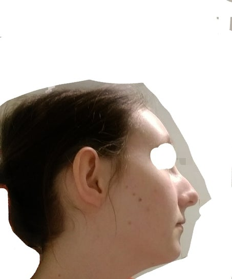 Side profile ugly I am