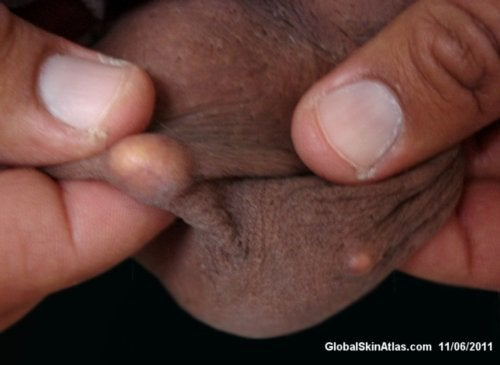 Sack bumps on scrotum White Dots