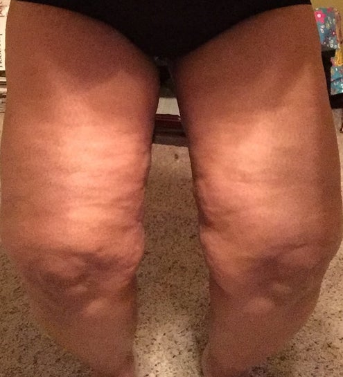 What S The Best Option To Correct Dimples And Cellulite Cellfina