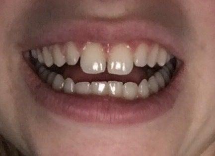 Teeth bunny how to get of rid Buck Teeth: