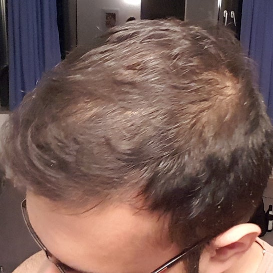 Will I Maintain This Hair On Minoxidil And Dutasteride After Restarting Photos