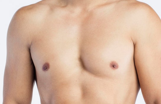 All About Gynecomastia Surgery Realself