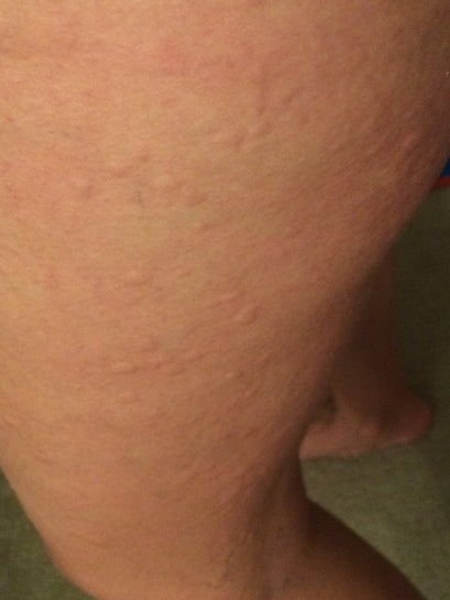 Hives After Coolsculpting Is It Safe To Get Another Cycle Of