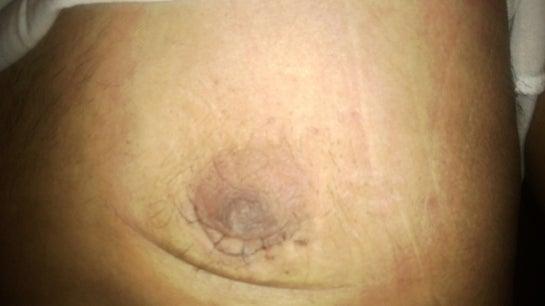 Using Mederma Scar Cream Post Gynocomastia Photo