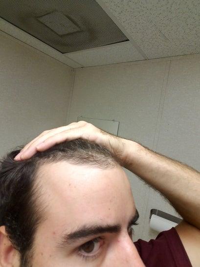 Receding hairline age