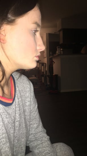 Profile ugly side Does anyone