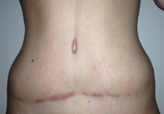 Bottoming Out Keloid Scars Large Areolas What Can I Do Photo