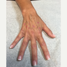 45-54 year old woman treated with Radiesse to the Hands