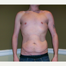 25-34 year old man treated with Male Tummy Tuck