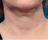 55-64 year old woman treated with Infini RF for neck lines