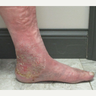 55-64 year old man treated with Vein Treatment