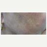 55-64 year old woman treated with Yag Laser