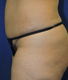 45-54 year old woman treated with Mini Tummy Tuck