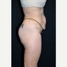 45-54 year old woman treated with Butt Lift and Liposuction