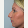 18-24 year old man treated with Rhinoplasty