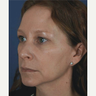 35-44 year old woman treated with Restylane