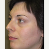 25-34 year old woman treated with Facial Feminization Surgery