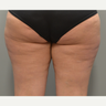 Cellulaze - 35 year old female, 2 months post-op98