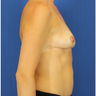 35-44 year old woman treated with Mini Tummy Tuck
