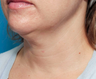 45-54 year old woman treated with Infini RF for neck