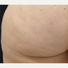 25-34 year old woman treated with Cellfina Cellulite Treatment