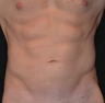 Liposculpture