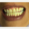 25-34 year old woman treated with Zoom Whitening