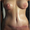 49 year old woman treated with Mommy make over