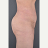 35-44 year old woman treated with Tumescent Liposuction