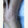 65-74 year old woman treated with Vein Treatment