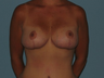 Mommy Makeover patient had a Breast Lift, an Abdominoplasty and VASER LipoSelection