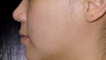 35-44 year old woman treated with Fraxel Restore to correct acne scars
