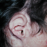 25-34 year old woman treated with Reconstructive Ear Surgery
