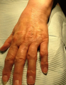 72 year old patient treated with Radiesse to the hands
