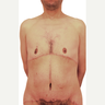 44 year old man treated with Body Lift