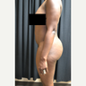 Woman treated with Smart Lipo