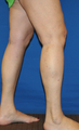 25-34 year old woman treated with Vein Treatment