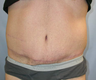 45-54 year old man treated with Male Tummy Tuck