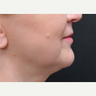 55-64 year old woman treated with ThermiTight for NonSurgical Neck Lift