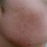 RF eMatrix for early scars and acne