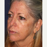 45-54 year old woman treated with Photodynamic Therapy
