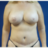 50 year old woman treated with DIEP flap Breast Reconstruction