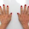 55-64 year old woman treated with Radiesse to her hands
