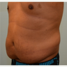 Tummy tuck and liposuction on 37 year old male patient.